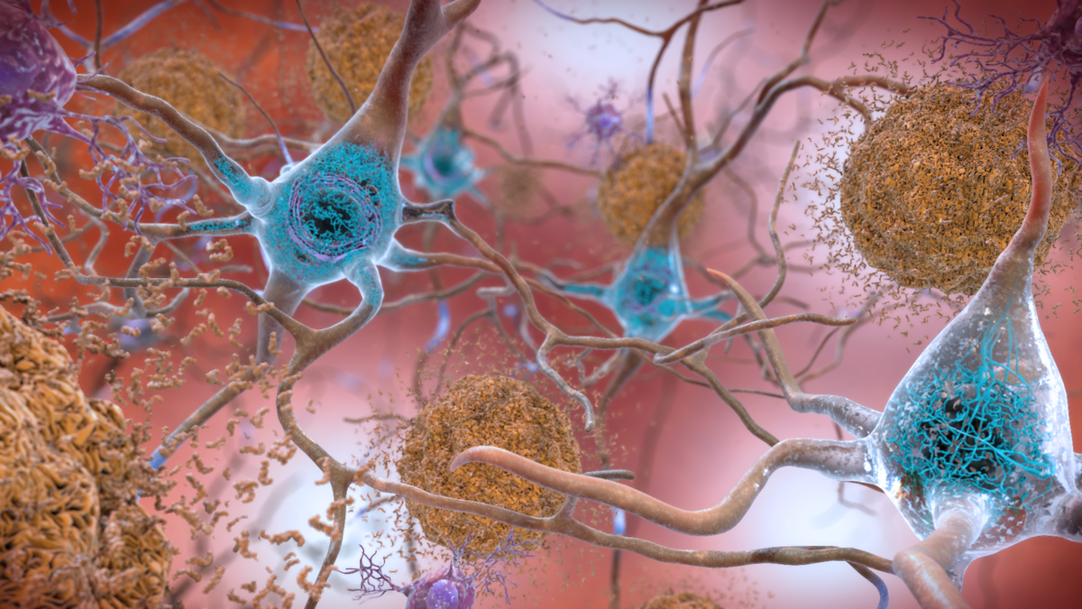 Neuro - cover