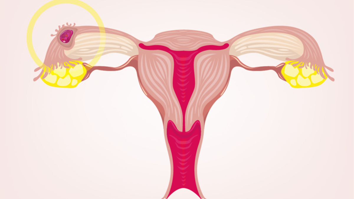 Why an Ectopic Pregnancy Can't Be 'Reimplanted'
