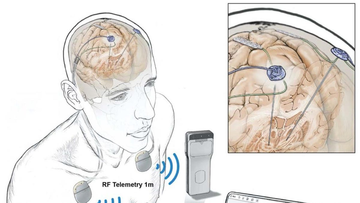 In a First, People Had Their Brain Activity Tracked Remotely During Everyday Life - Gizmodo