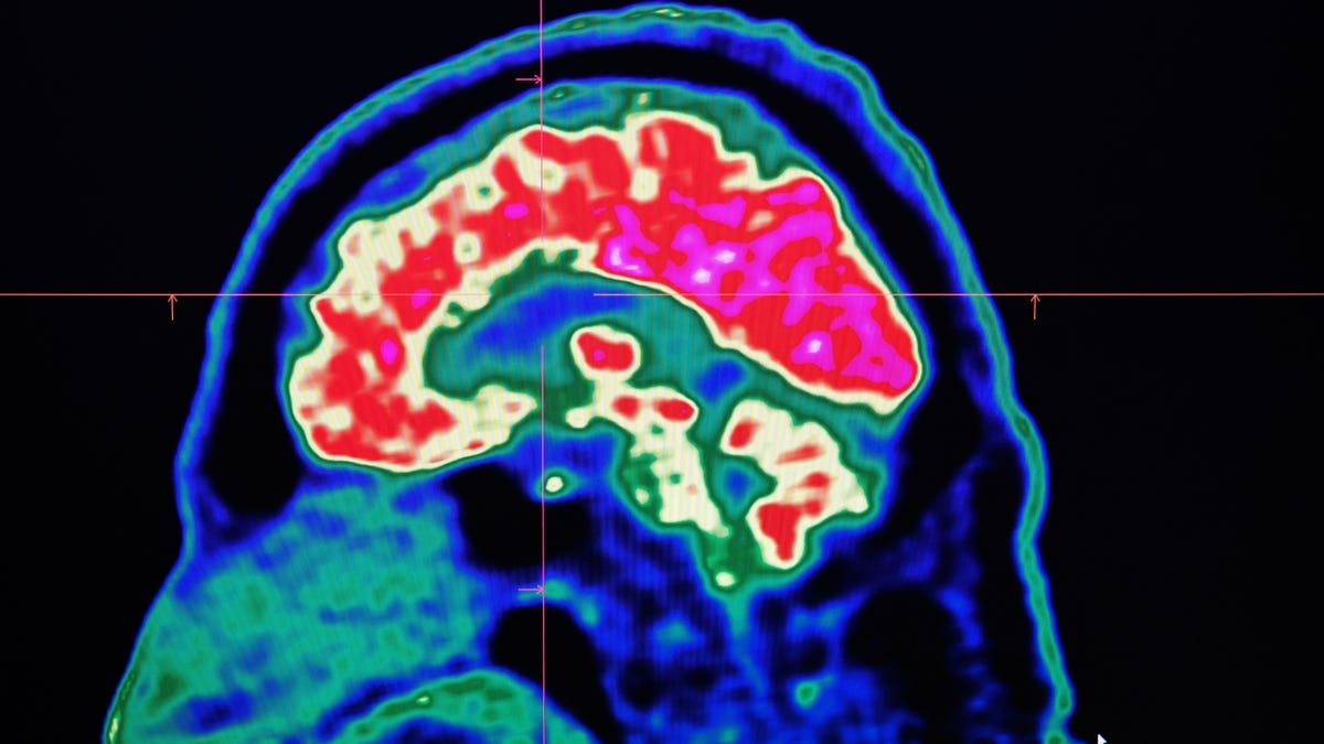 Some of Our Brain Cells Get More Active Hours After We Die, Study Finds