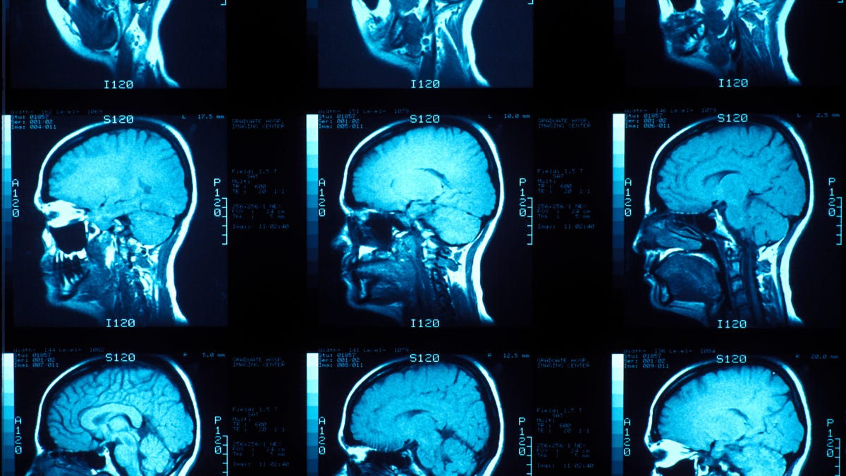Scientists Come Closer to Finding Out What Consciousness Looks Like in the Brain