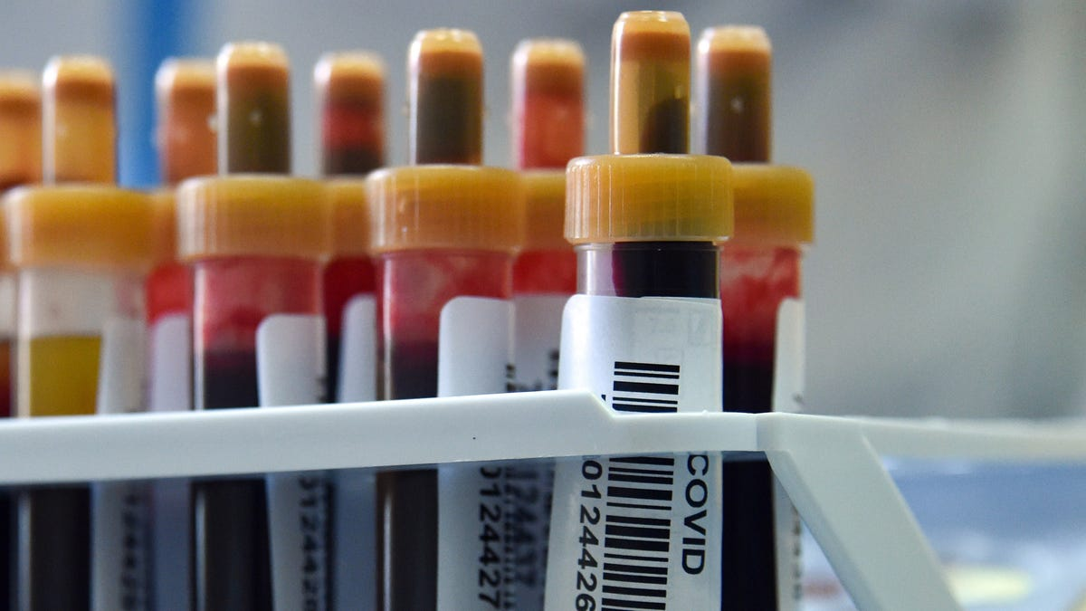 The CDC Is Screwing Up How We Count Covid-19 Testing Numbers