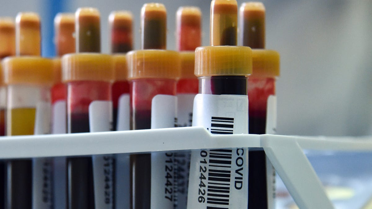 One Kind of Immunity to the Coronavirus Lasts at Least Six Months, Study Finds