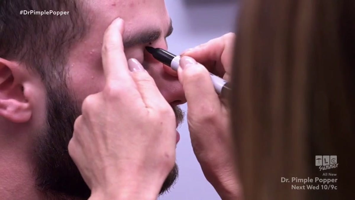 Review Dr Pimple Popper Welcomes Us To The Triangle Of Death