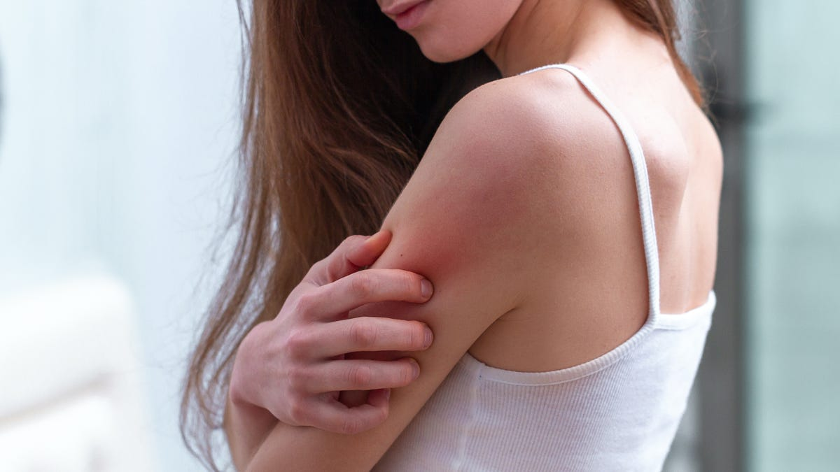 How Much Should You Worry About That Post-Vaccine Rash?