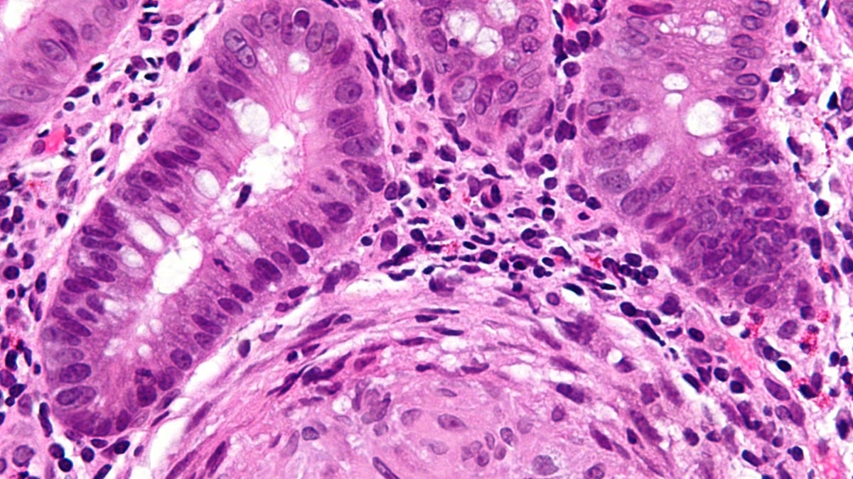 A Common Yeast May Cause Trouble For Crohn's Patients