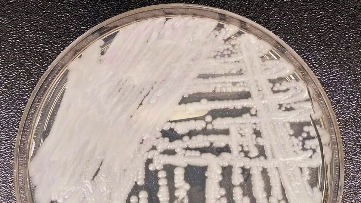 Deadly Super Yeast Found in the Wild for the First Time