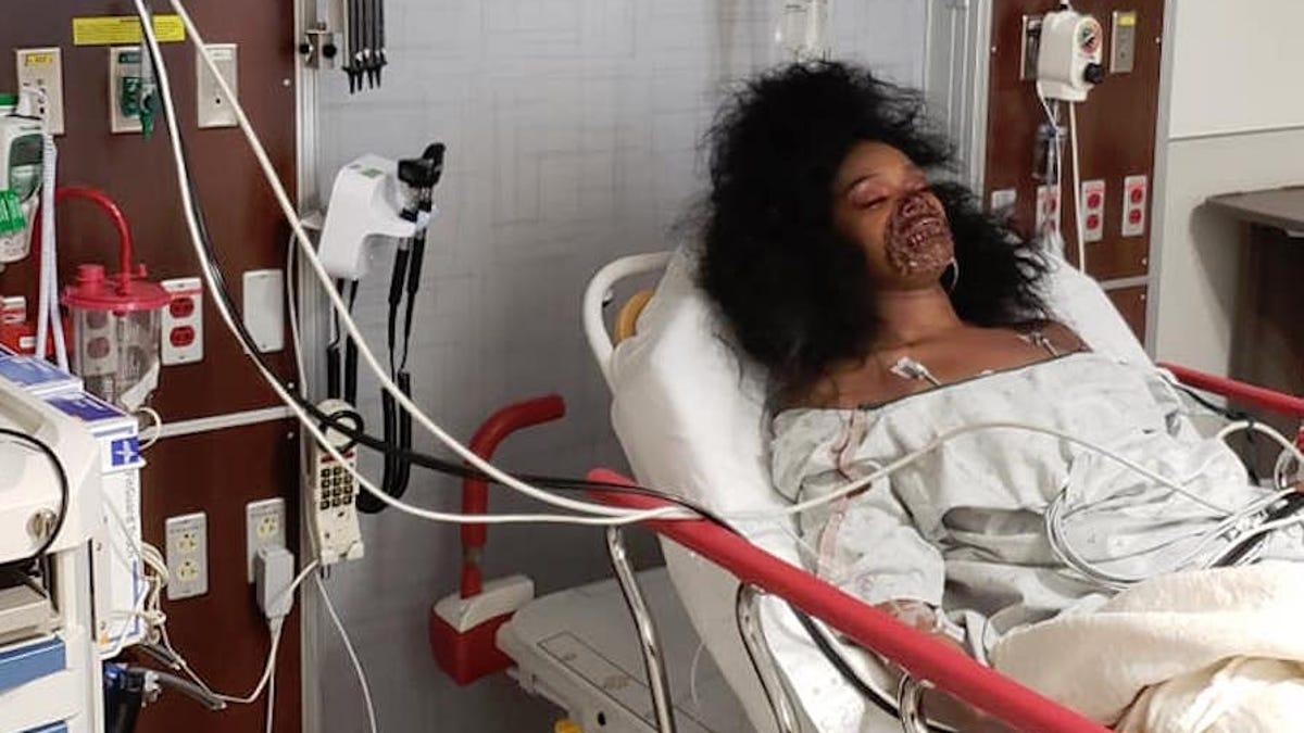 Una mujer termina en la sala de urgencias después de que el hospital creyera que su maquillaje de zombie era real