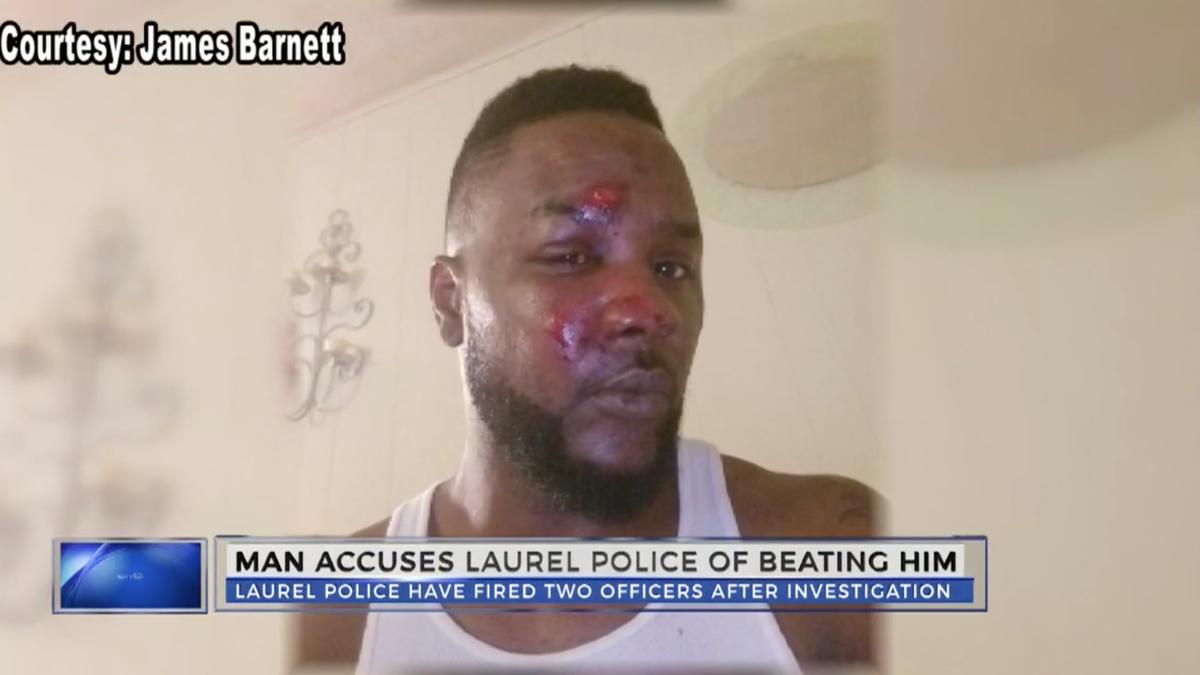 2 Mississippi Police Officers Fired After Brutally Beating, Kicking Black Man