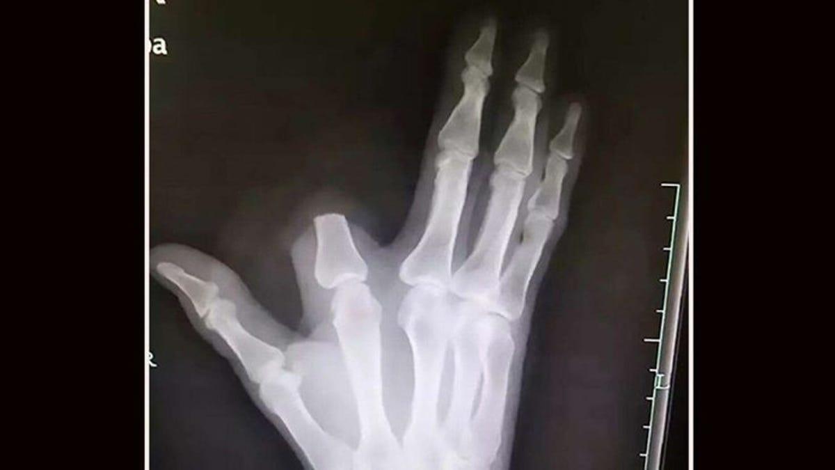 Se corta el dedo tras la mordedura de una serpiente. Los médicos le explican que no era necesario