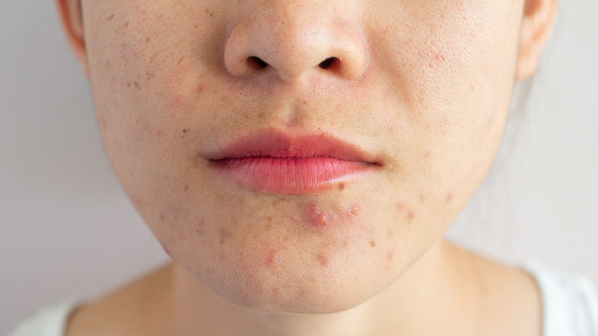 Scientists Still Don't Really Know What Causes Acne