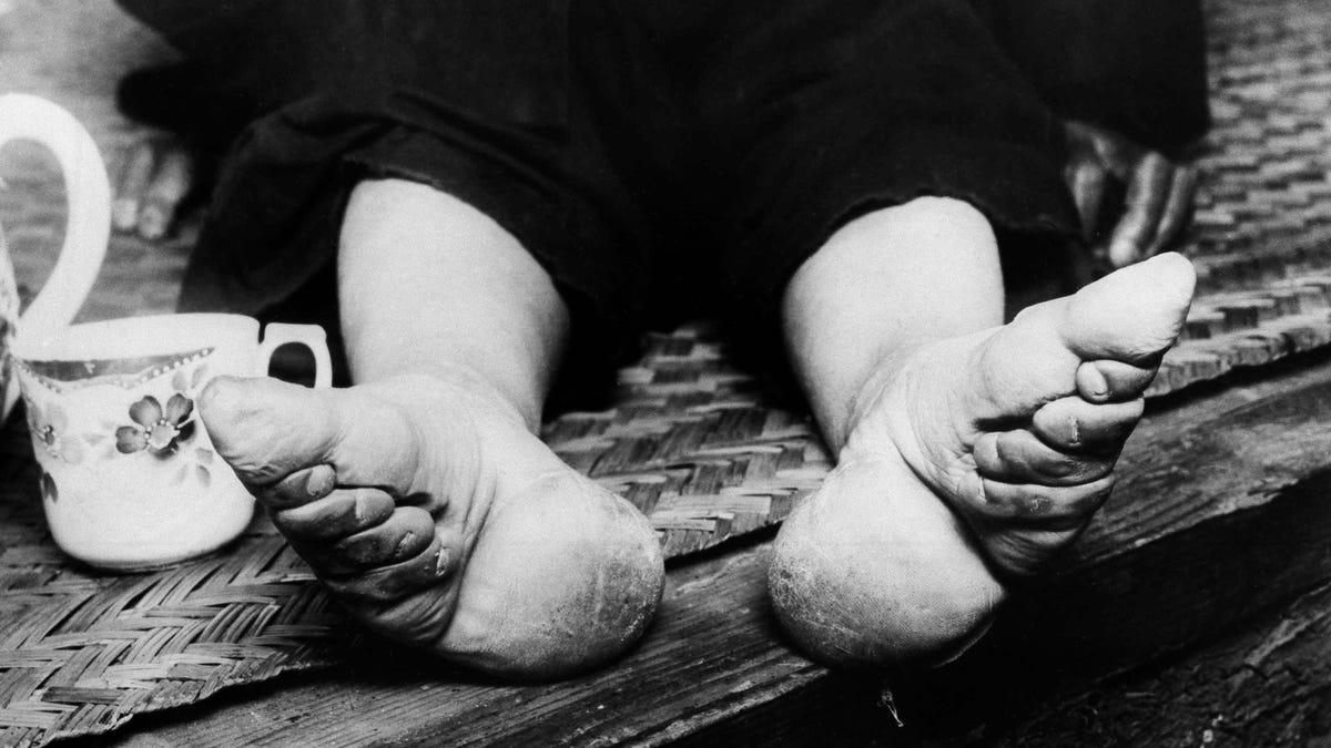 El Espeluznante Proceso Chino De Los Pies De Loto La Momificación De Las Extremidades Para Encontrar Pareja