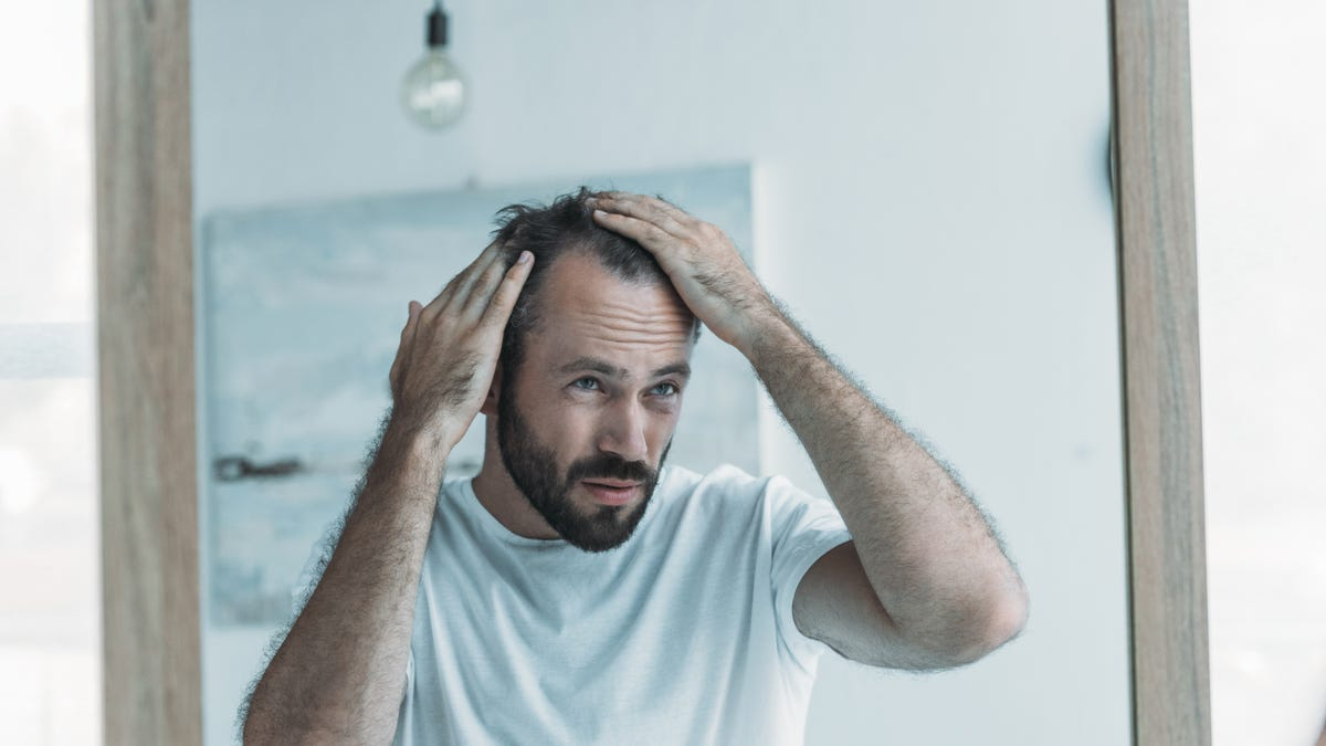 How Check If Your Hair Loss Is Within Normal Limits