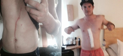 A spider crawled inside this man's body for three days (updated)