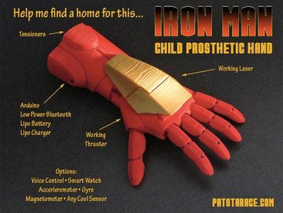 Iron Man Prosthetic Hand Will Make Kids Feel Like Superheroes