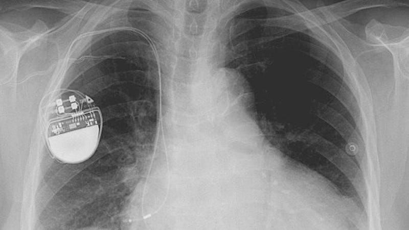 There Are 'Thousands' Of Bugs Making Pacemakers Vulnerable To Hackers