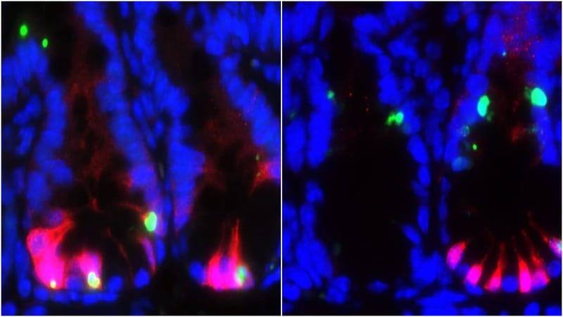 The image on the left shows mice stem cells (red) being killed (green) by chemotherapy. The image on the right shows some stem cells protected by the PUMA inhibitor even with chemotherapy treatment. Image: Science Translational Medicine/Jian Yu.