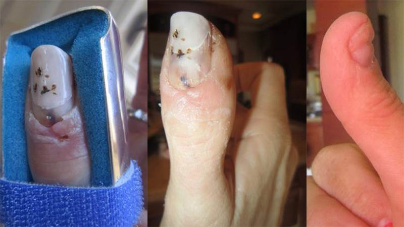 Illustration for article titled Owner Claims $225K Bentley Did This To His Wife's Thumb