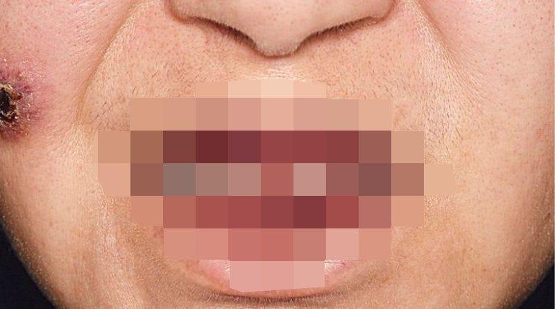 Illustration for article titled La peligrosa afección de la gingivitis de fresa: cuando las encías están tan inflamadas que parecen a punto de explotar