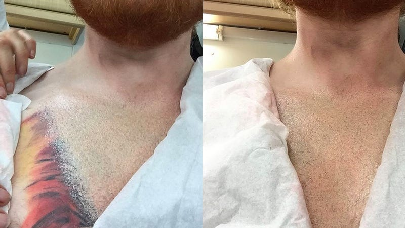 Illustration for article titled Ed Sheeran, the Devil, Was Joking About His Terrible Chest Tattoo Being Fake