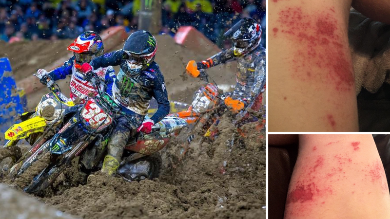 A photo from the 250SX race shows how muddy the track was (left); 450SX rider Vann Martin's rashes after the race (right).