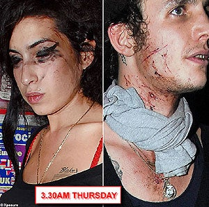 Illustration for article titled Amy Winehouse Is A Bloody Mess. Literally.