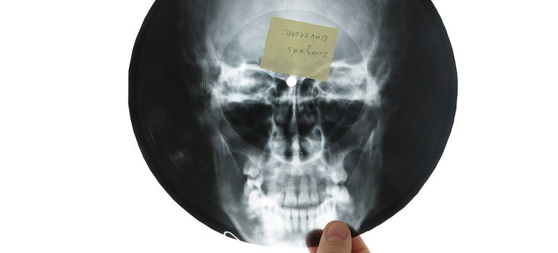 Illustration for article titled The Bizarre History of X-Ray Records and Early Music Piracy