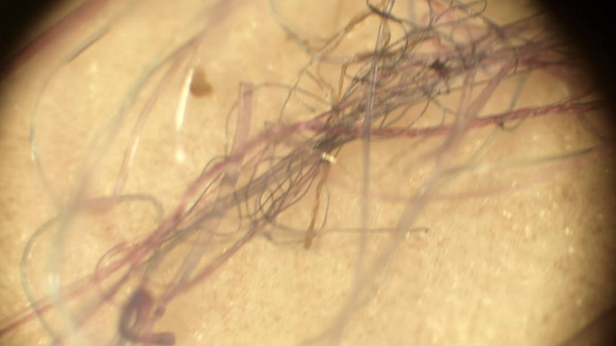 Inside Morgellons, the Internet's Disease