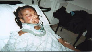 Jordan Miles in the hospital after his beating by three undercover police officers.youtube