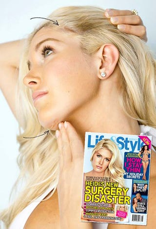 """Illustration for article titled Surgery Ruined Heidi Montag's """"Career"""""""