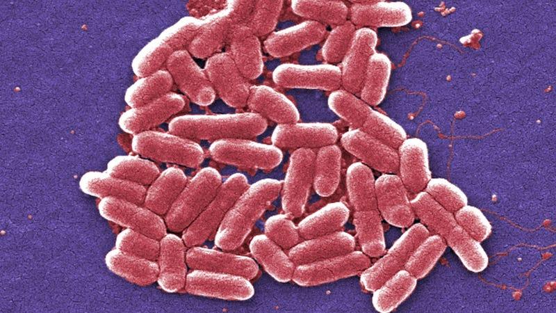 E. coli bacteria.