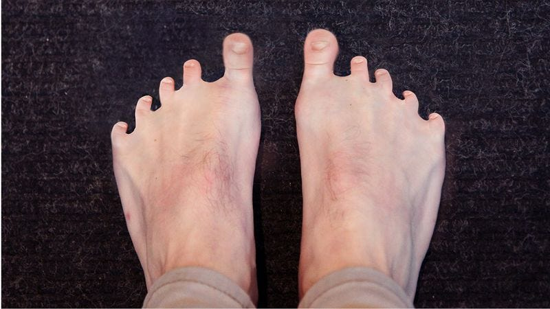 Illustration for article titled Medical Marvel! Meet The 30-Year-Old Man Who Never Lost His Baby Toes