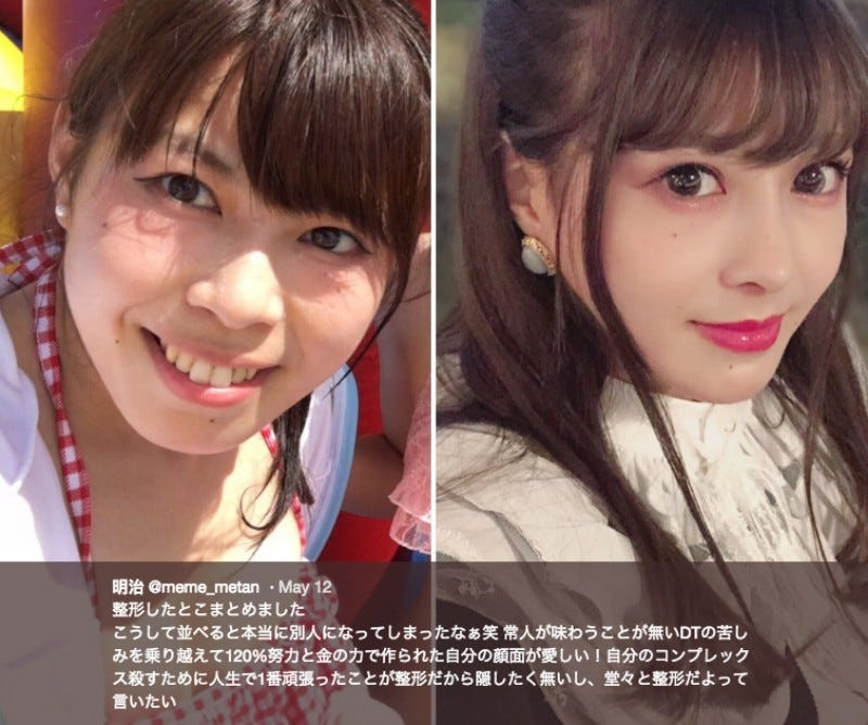 Illustration for article titled Japanese Cosplayer Doesn't Want To Hide Her Plastic Surgery