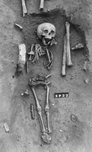 Illustration for article titled Oldest Confirmed Case Of Down's Syndrome Suggests No Stigma In Death
