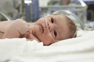 birth injury attorneys