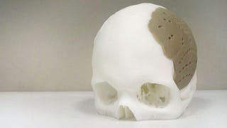 Illustration for article titled Dude Has 75 Percent of His Skull Replaced By 3D-Printed Replica