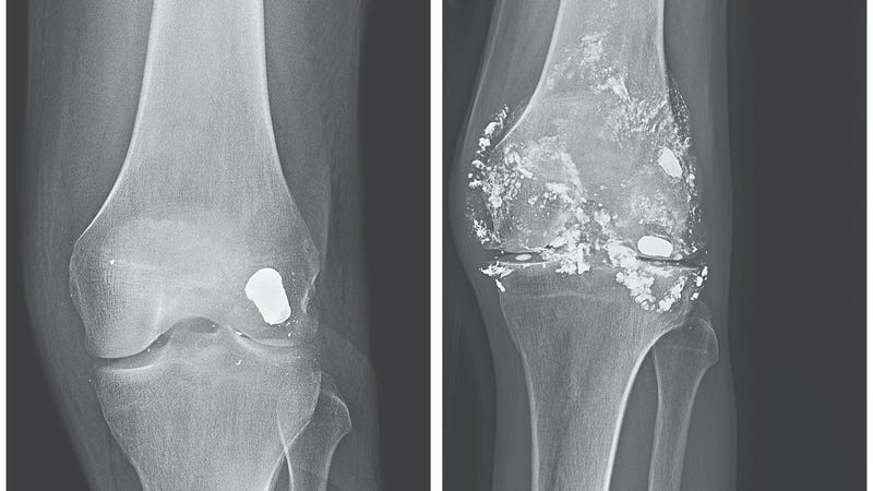 Two side-by-side x-rays of the man's knee and the bullet, 14 years apart.