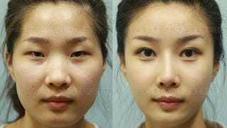 Illustration for article titled How South Korean Plastic Surgeons Make Passport Photos Worthless