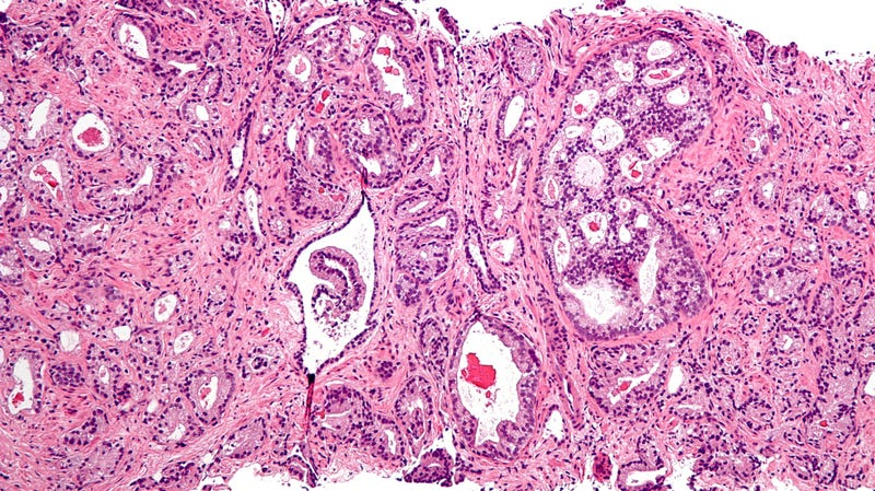 A micrograph of prostatic acinar adenocarcinoma, the most common form of prostate cancer.