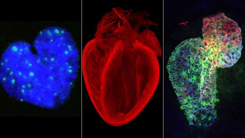 La belleza científica de los corazones, en imágenes