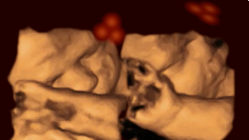Ultrasound of fetus (Image: Kirsty Dunn & Vincent Reid)