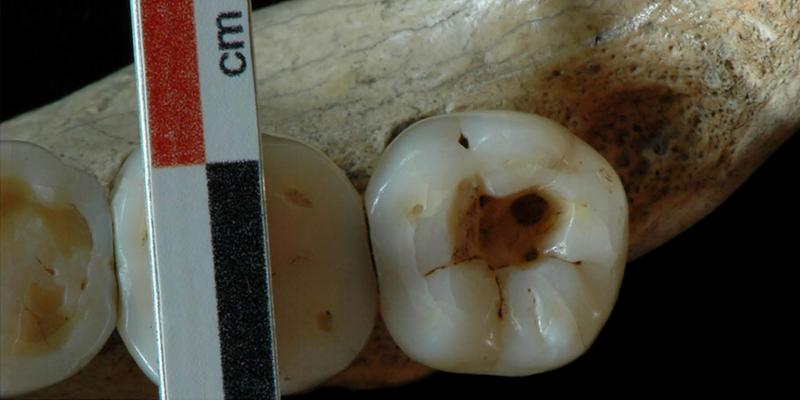 Illustration for article titled Hallan la 1ª prueba de intervenciones dentales hace 14.000 años