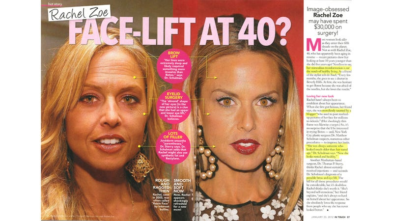 Illustration for article titled Rachel Zoe's Facelift Is Really Well Done.
