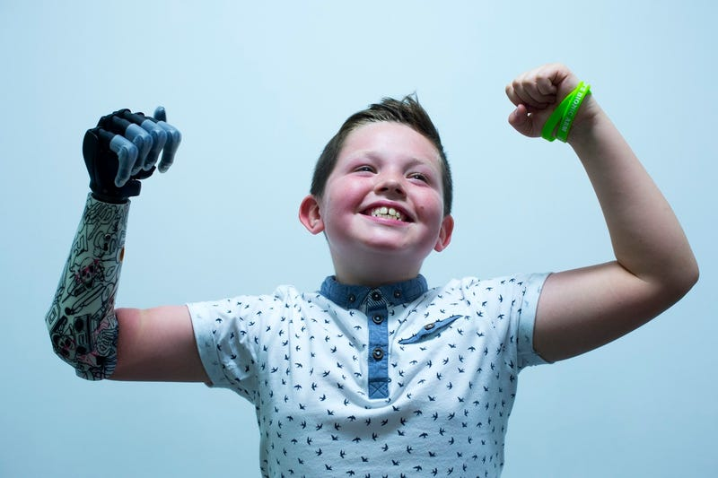 Illustration for article titled Kid Gets Awesome New Bionic Hand, Reminds Us Not Everything is Garbage
