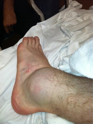 Illustration for article titled In Which Sport Can You Win Despite This Grotesquely Swollen Ankle?