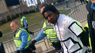 Bloody man arrested at Donald Trump rally in St. Louis on March 11, 2016Twitter