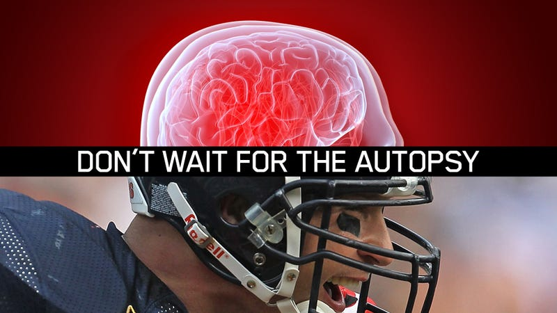 Illustration for article titled Can Science See Inside An NFL Player's Skull Before It's Too Late?