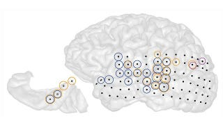 Illustration for article titled Scientists Mapped Activity In The Brain Of A Tinnitus Sufferer