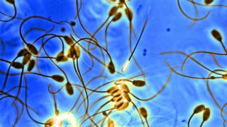Scientists Have Created Functional Sperm From Stem Cells