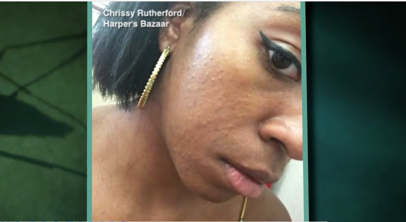 Chrissy Rutherford shows the rash on her face that initially sparked her fears of having contracted the Zika virus.ABC News screenshot